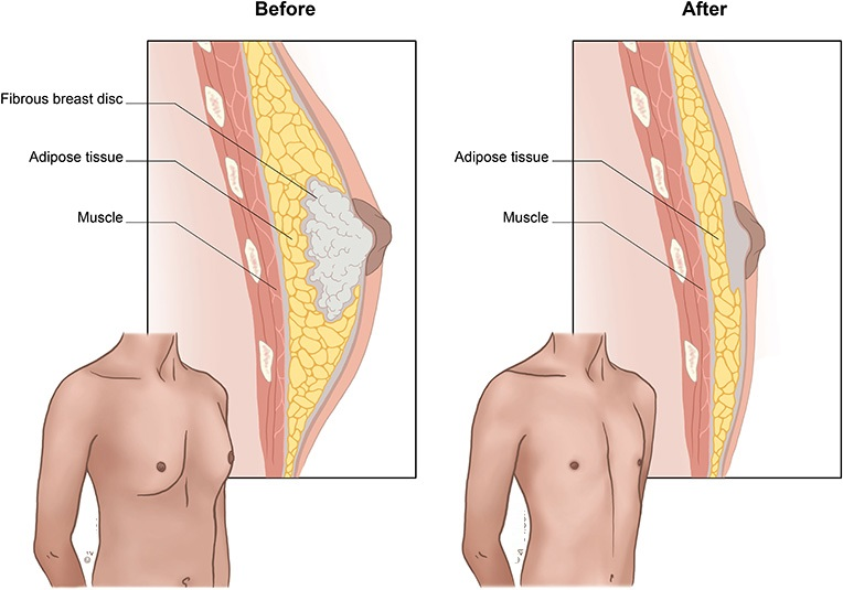Gynecomastia-what.it.is