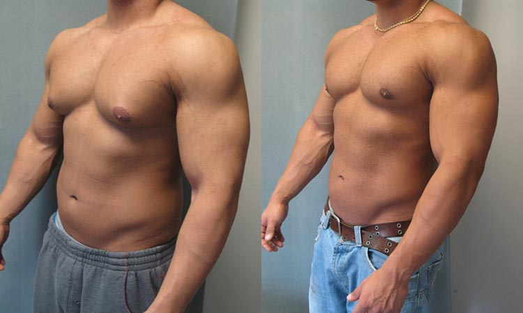 gynecomastia-bodybuilding