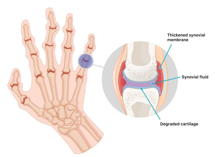 Arthritis-and-Joints